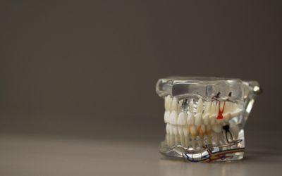 Zła dieta żywienia się to większe deficyty w jamie ustnej natomiast także ich zgubę